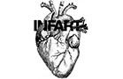 acu-infart